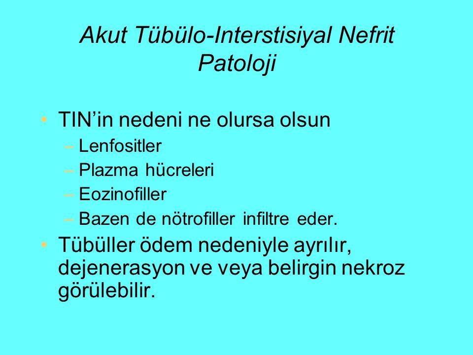 Akut Tübülo-Interstisiyal Nefrit Patoloji TIN'in nedeni ne olursa olsun –Lenfositler –Plazma hücreleri –Eozinofiller –Bazen de nötrofiller infiltre ed