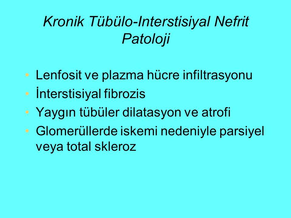 Kronik Tübülo-Interstisiyal Nefrit Patoloji Lenfosit ve plazma hücre infiltrasyonu İnterstisiyal fibrozis Yaygın tübüler dilatasyon ve atrofi Glomerül