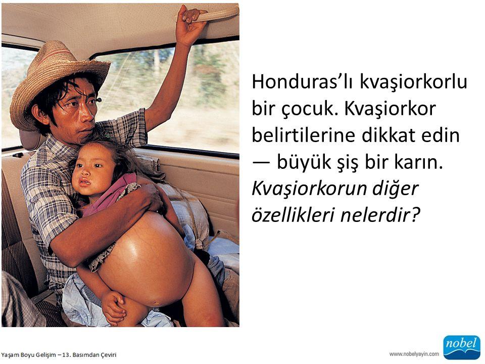 Honduras'lı kvaşiorkorlu bir çocuk. Kvaşiorkor belirtilerine dikkat edin — büyük şiş bir karın. Kvaşiorkorun diğer özellikleri nelerdir?