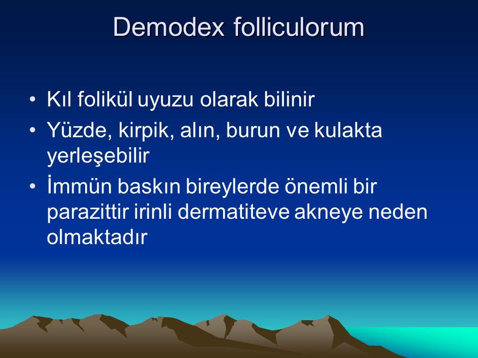 Demodex folliculorum Kıl folikül uyuzu olarak bilinir Yüzde, kirpik, alın, burun ve kulakta yerleşebilir İmmün baskın bireylerde önemli bir parazittir