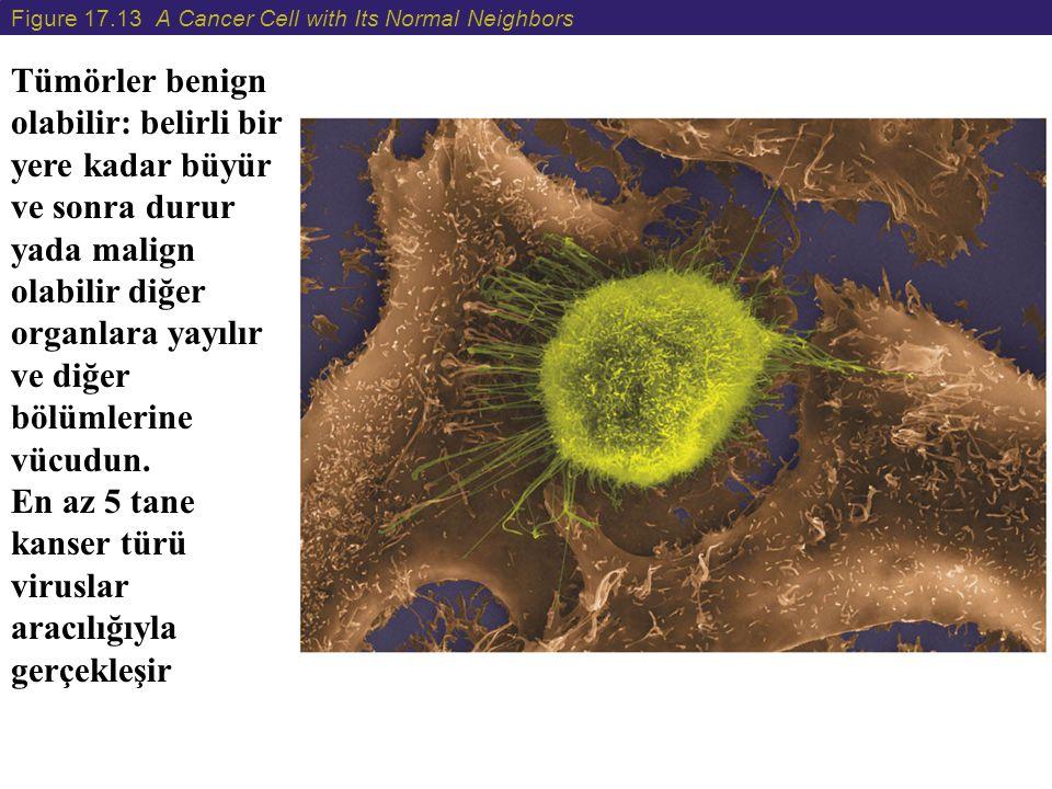Figure 17.13 A Cancer Cell with Its Normal Neighbors Tümörler benign olabilir: belirli bir yere kadar büyür ve sonra durur yada malign olabilir diğer