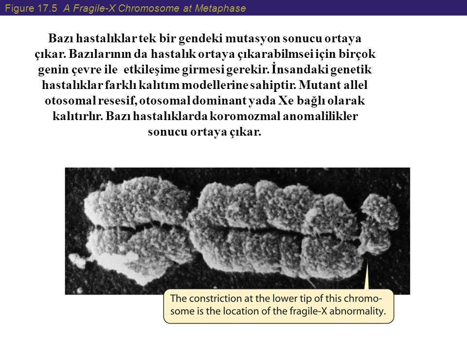 Figure 17.5 A Fragile-X Chromosome at Metaphase Bazı hastalıklar tek bir gendeki mutasyon sonucu ortaya çıkar. Bazılarının da hastalık ortaya çıkarabi
