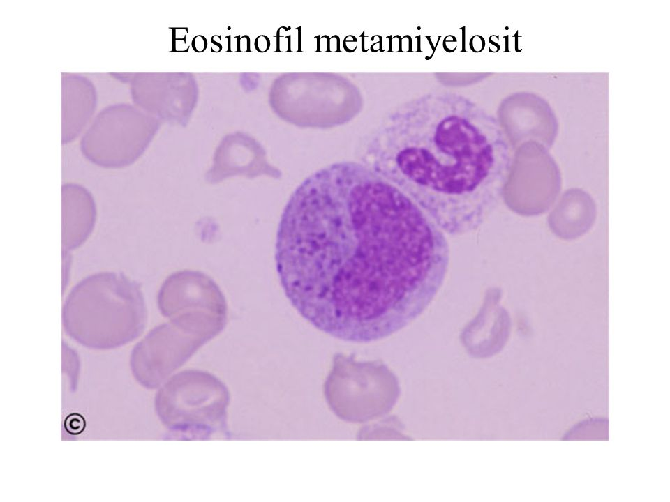 Eosinofil metamiyelosit