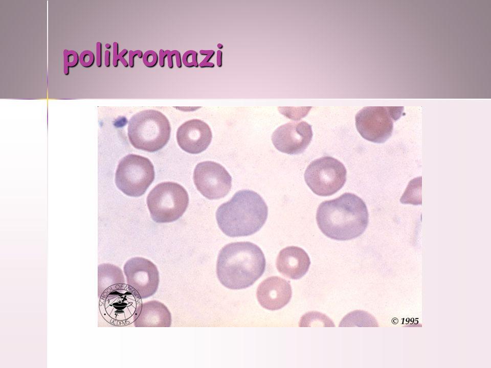 polikromazi
