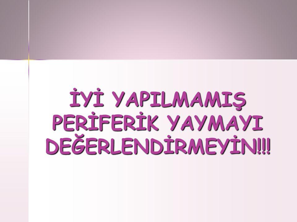 İYİ YAPILMAMIŞ PERİFERİK YAYMAYI DEĞERLENDİRMEYİN!!!