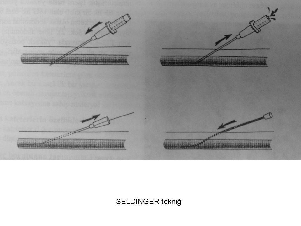 SELDİNGER tekniği