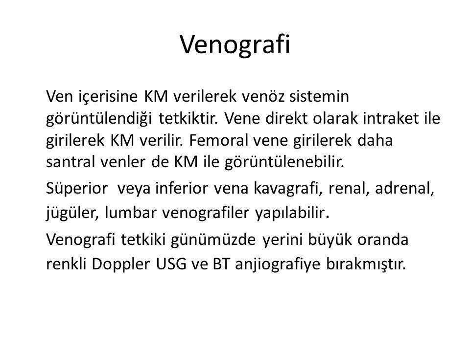 Venografi Ven içerisine KM verilerek venöz sistemin görüntülendiği tetkiktir. Vene direkt olarak intraket ile girilerek KM verilir. Femoral vene giril