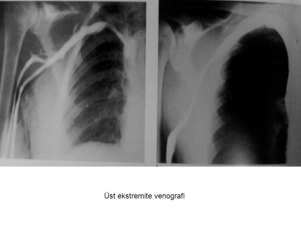 Üst ekstremite venografi