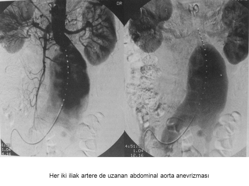 Her iki iliak artere de uzanan abdominal aorta anevrizması