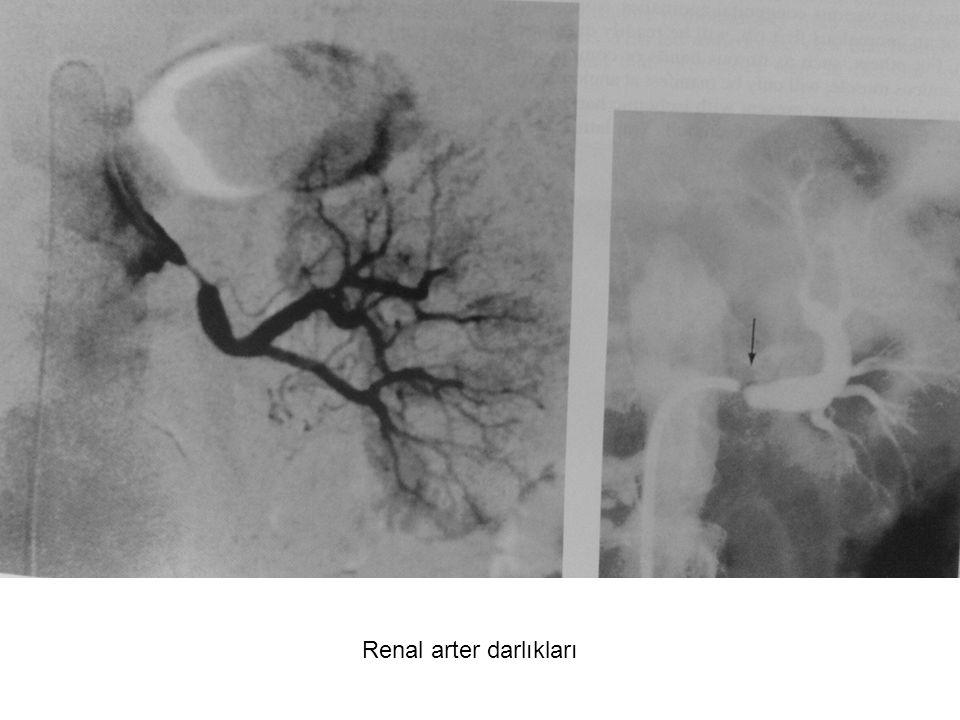 Renal arter darlıkları