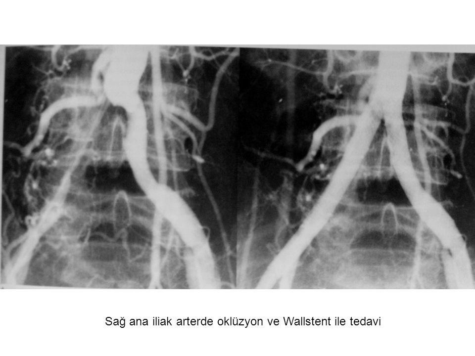 Sağ ana iliak arterde oklüzyon ve Wallstent ile tedavi