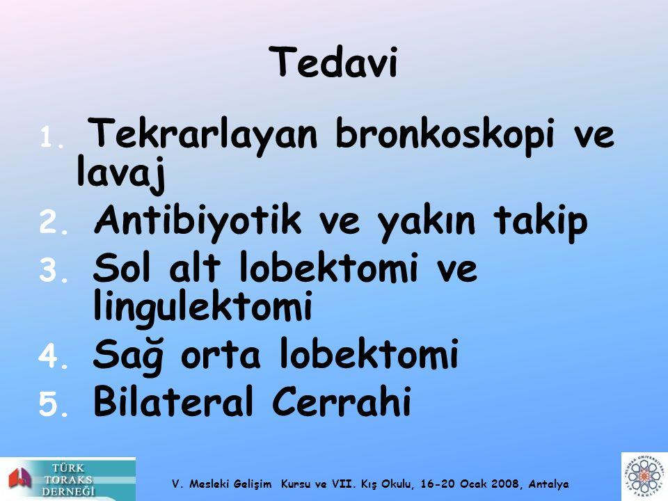 V. Mesleki Gelişim Kursu ve VII. Kış Okulu, 16-20 Ocak 2008, Antalya Tedavi 1. Tekrarlayan bronkoskopi ve lavaj 2. Antibiyotik ve yakın takip 3. Sol a