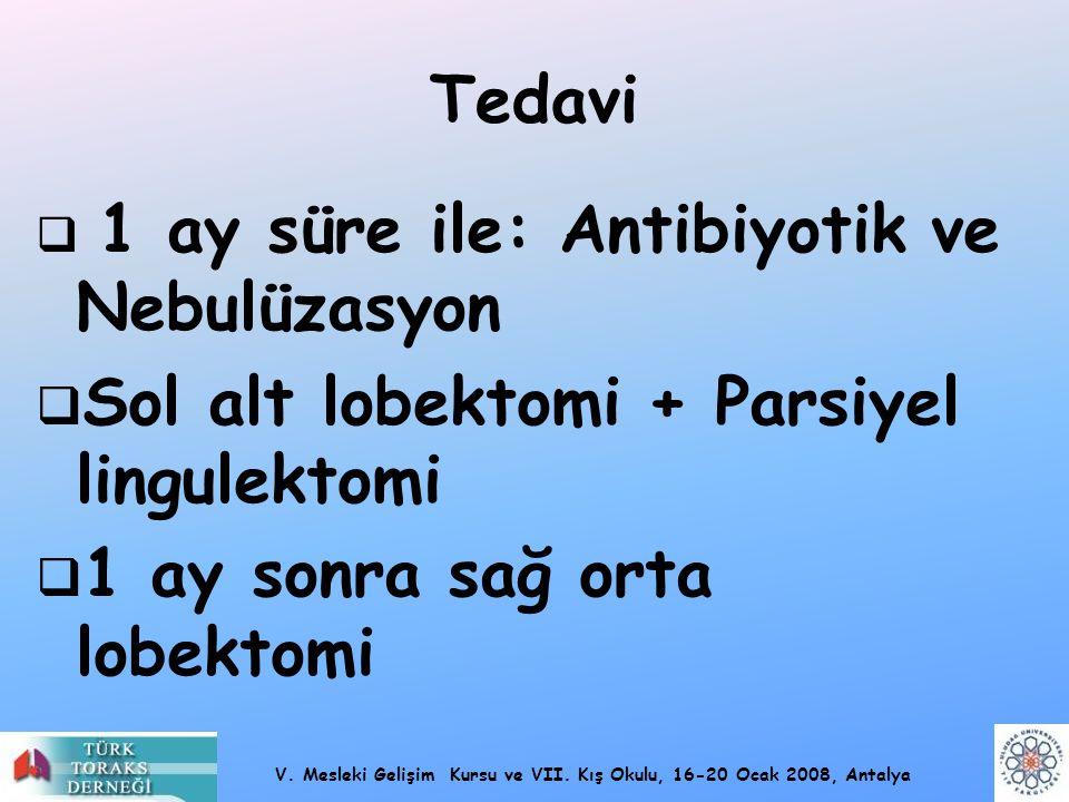 V. Mesleki Gelişim Kursu ve VII. Kış Okulu, 16-20 Ocak 2008, Antalya Tedavi  1 ay süre ile: Antibiyotik ve Nebulüzasyon  Sol alt lobektomi + Parsiye