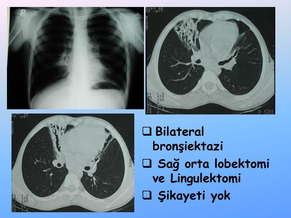  Bilateral bronşiektazi  Sağ orta lobektomi ve Lingulektomi  Şikayeti yok