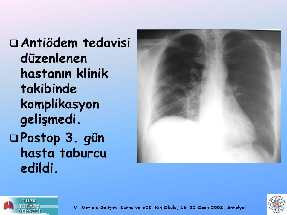 V. Mesleki Gelişim Kursu ve VII. Kış Okulu, 16-20 Ocak 2008, Antalya  Antiödem tedavisi düzenlenen hastanın klinik takibinde komplikasyon gelişmedi.