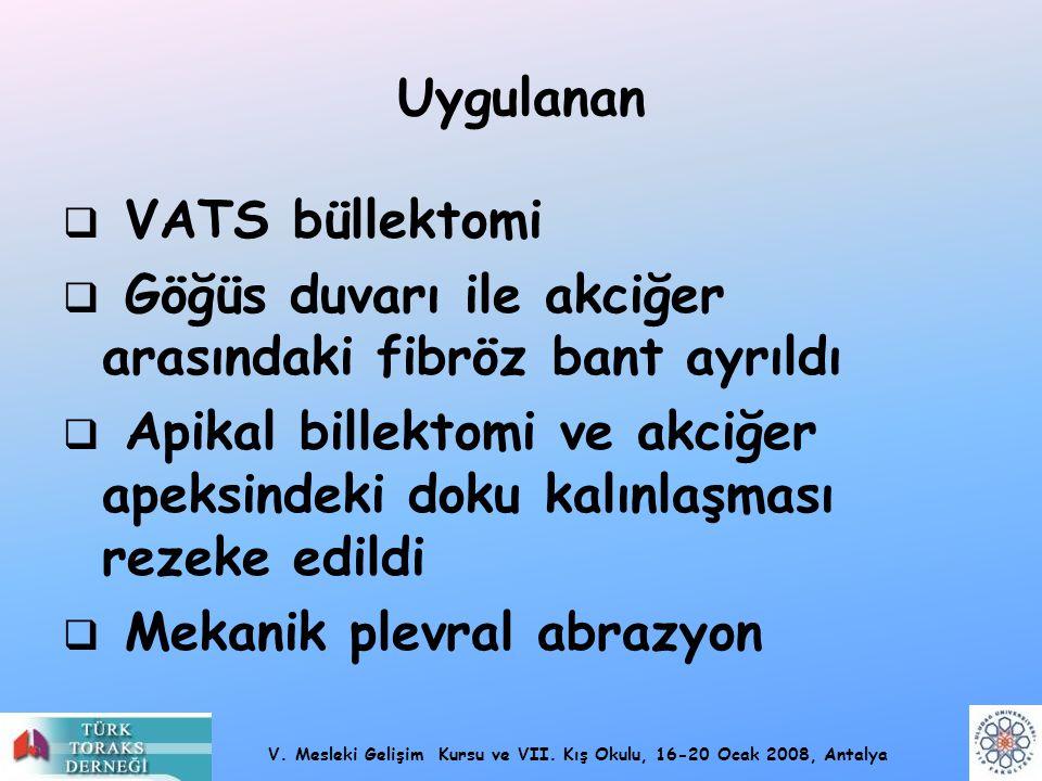 V. Mesleki Gelişim Kursu ve VII. Kış Okulu, 16-20 Ocak 2008, Antalya Uygulanan  VATS büllektomi  Göğüs duvarı ile akciğer arasındaki fibröz bant ayr