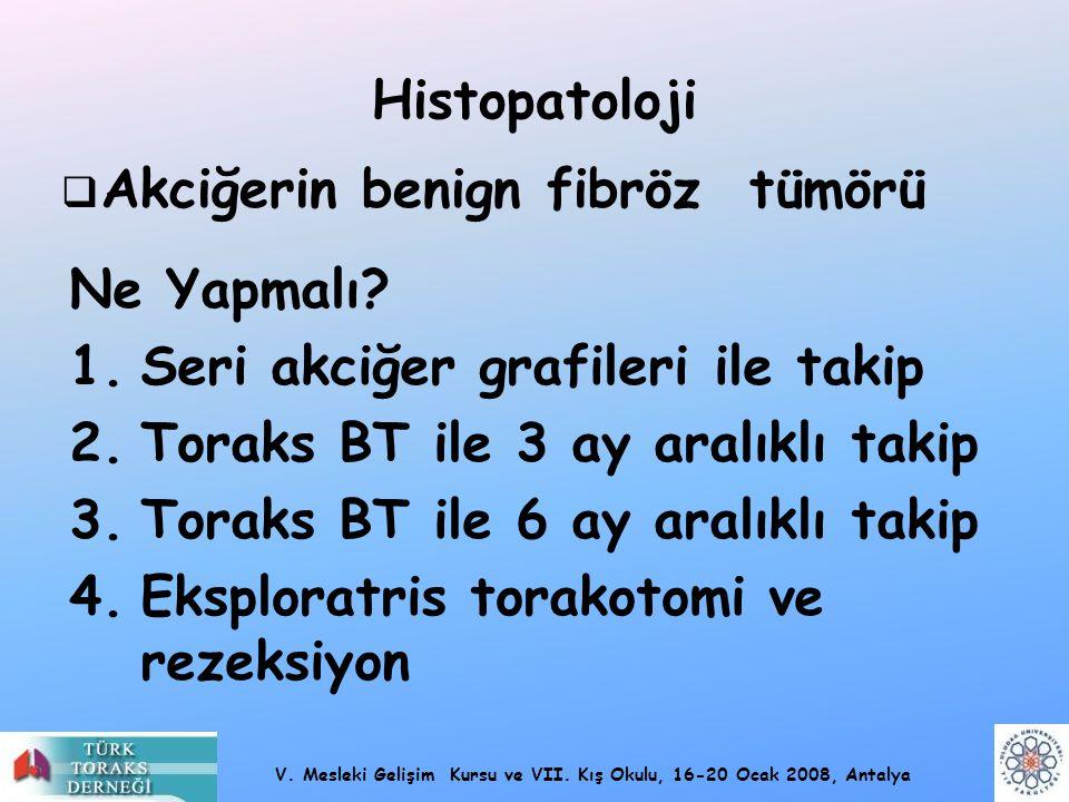 V. Mesleki Gelişim Kursu ve VII. Kış Okulu, 16-20 Ocak 2008, Antalya Histopatoloji  Akciğerin benign fibröz tümörü Ne Yapmalı? 1.Seri akciğer grafile