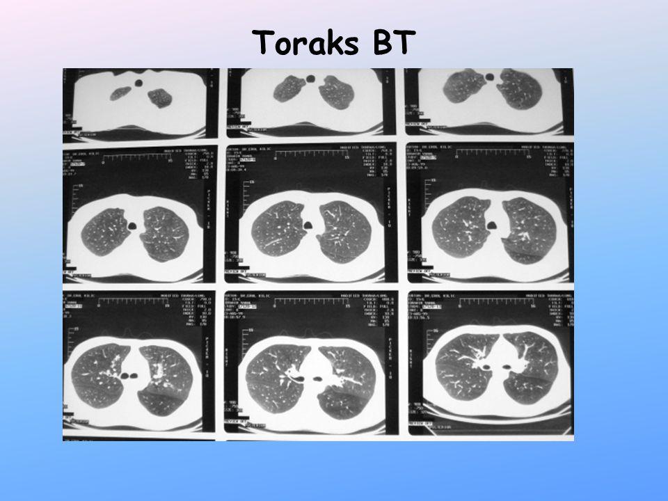 RT+KT 4 ay sonra solunum zorluğu Trakeal stent yerleştirilmesi
