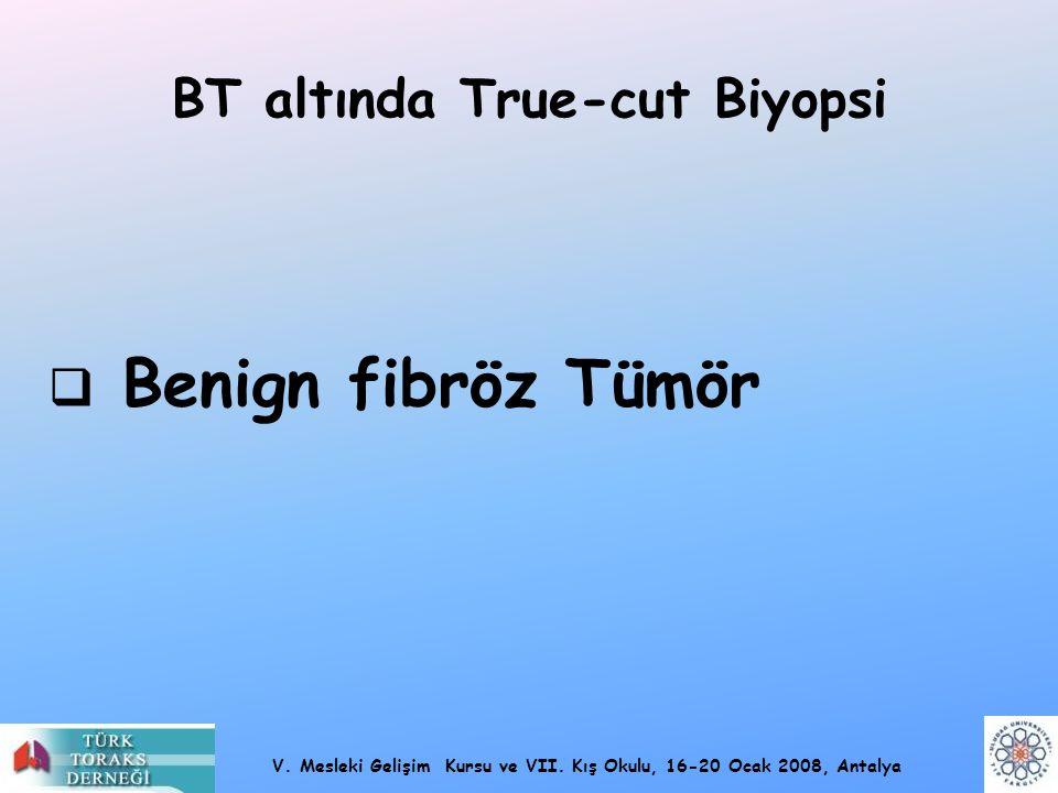 V. Mesleki Gelişim Kursu ve VII. Kış Okulu, 16-20 Ocak 2008, Antalya BT altında True-cut Biyopsi  Benign fibröz Tümör