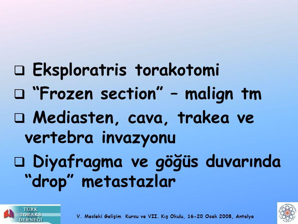 """V. Mesleki Gelişim Kursu ve VII. Kış Okulu, 16-20 Ocak 2008, Antalya  Eksploratris torakotomi  """"Frozen section"""" – malign tm  Mediasten, cava, trake"""