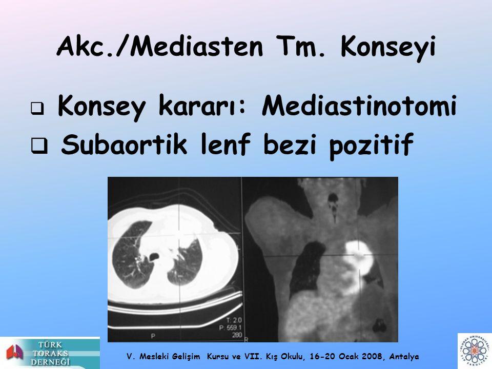 V. Mesleki Gelişim Kursu ve VII. Kış Okulu, 16-20 Ocak 2008, Antalya Akc./Mediasten Tm. Konseyi  Konsey kararı: Mediastinotomi  Subaortik lenf bezi