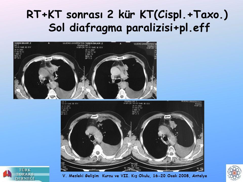 V. Mesleki Gelişim Kursu ve VII. Kış Okulu, 16-20 Ocak 2008, Antalya RT+KT sonrası 2 kür KT(Cispl.+Taxo.) Sol diafragma paralizisi+pl.eff