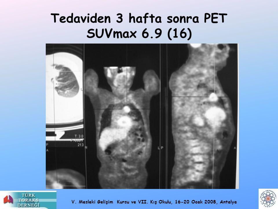 V. Mesleki Gelişim Kursu ve VII. Kış Okulu, 16-20 Ocak 2008, Antalya Tedaviden 3 hafta sonra PET SUVmax 6.9 (16)