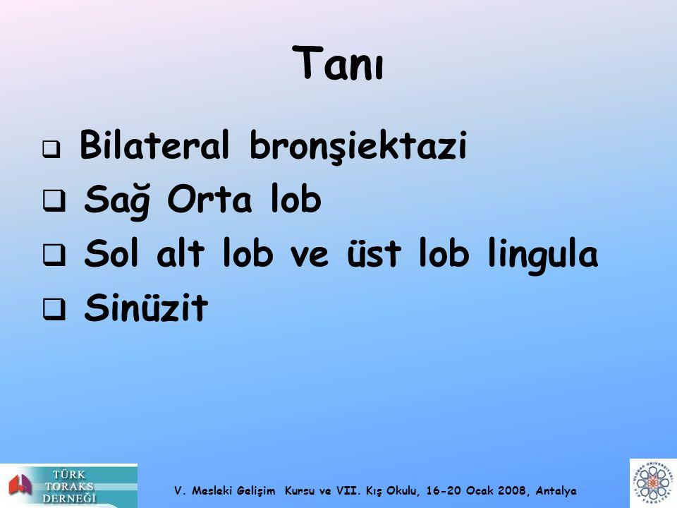 V. Mesleki Gelişim Kursu ve VII. Kış Okulu, 16-20 Ocak 2008, Antalya Tanı  Bilateral bronşiektazi  Sağ Orta lob  Sol alt lob ve üst lob lingula  S