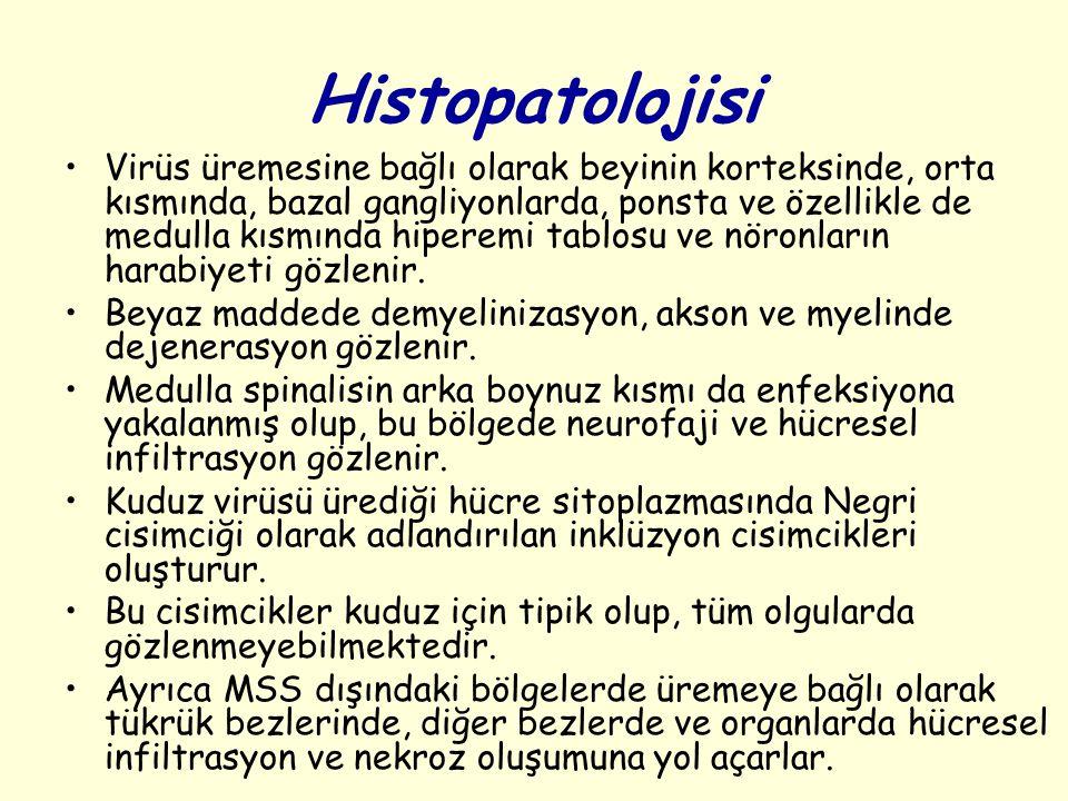 Histopatolojisi Virüs üremesine bağlı olarak beyinin korteksinde, orta kısmında, bazal gangliyonlarda, ponsta ve özellikle de medulla kısmında hiperem