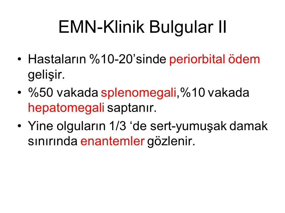 EMN-Klinik Bulgular II Hastaların %10-20'sinde periorbital ödem gelişir. %50 vakada splenomegali,%10 vakada hepatomegali saptanır. Yine olguların 1/3
