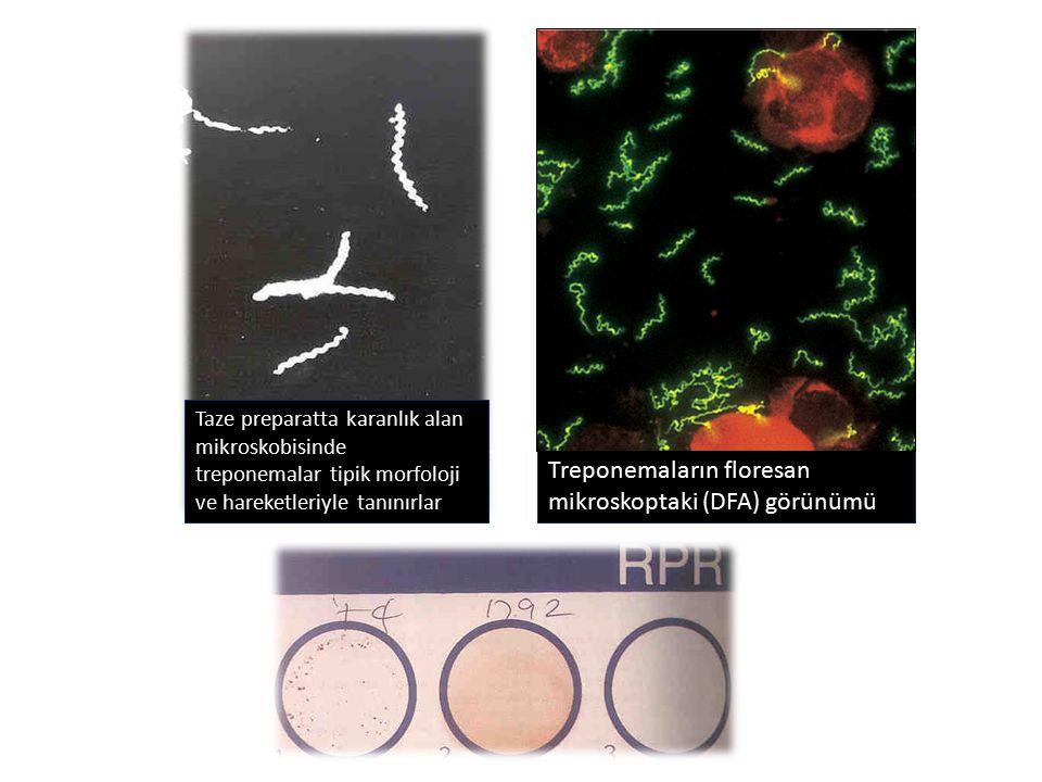 Taze preparatta karanlık alan mikroskobisinde treponemalar tipik morfoloji ve hareketleriyle tanınırlar Treponemaların floresan mikroskoptaki (DFA) gö
