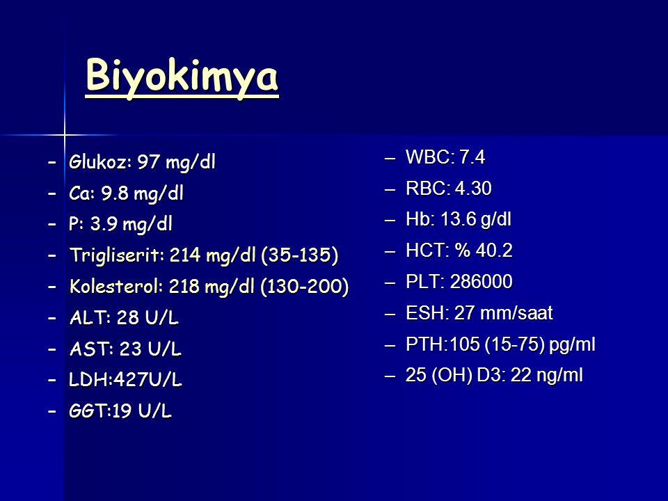 Biyokimya –Glukoz: 97 mg/dl –Ca: 9.8 mg/dl –P: 3.9 mg/dl –Trigliserit: 214 mg/dl (35-135) –Kolesterol: 218 mg/dl (130-200) –ALT: 28 U/L –AST: 23 U/L –LDH:427U/L –GGT:19 U/L –WBC: 7.4 –RBC: 4.30 –Hb: 13.6 g/dl –HCT: % 40.2 –PLT: 286000 –ESH: 27 mm/saat –PTH:105 (15-75) pg/ml –25 (OH) D3: 22 ng/ml