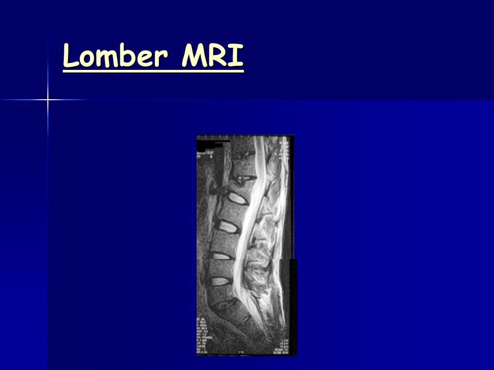Lomber MRI