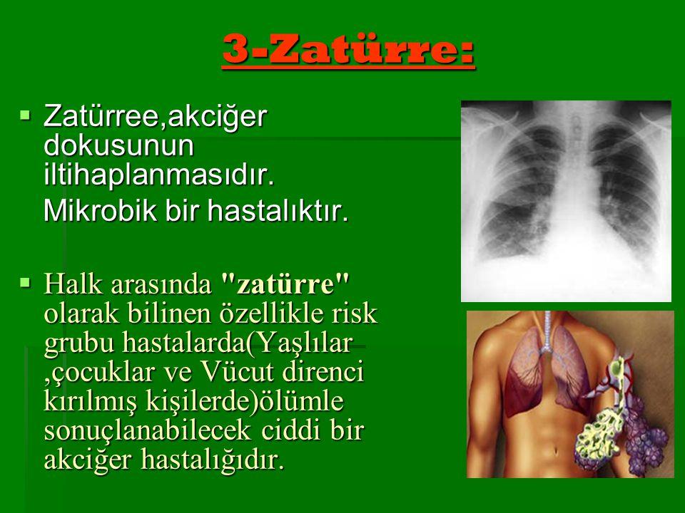 3-Zatürre:  Zatürree,akciğer dokusunun iltihaplanmasıdır. Mikrobik bir hastalıktır. Mikrobik bir hastalıktır.  Halk arasında