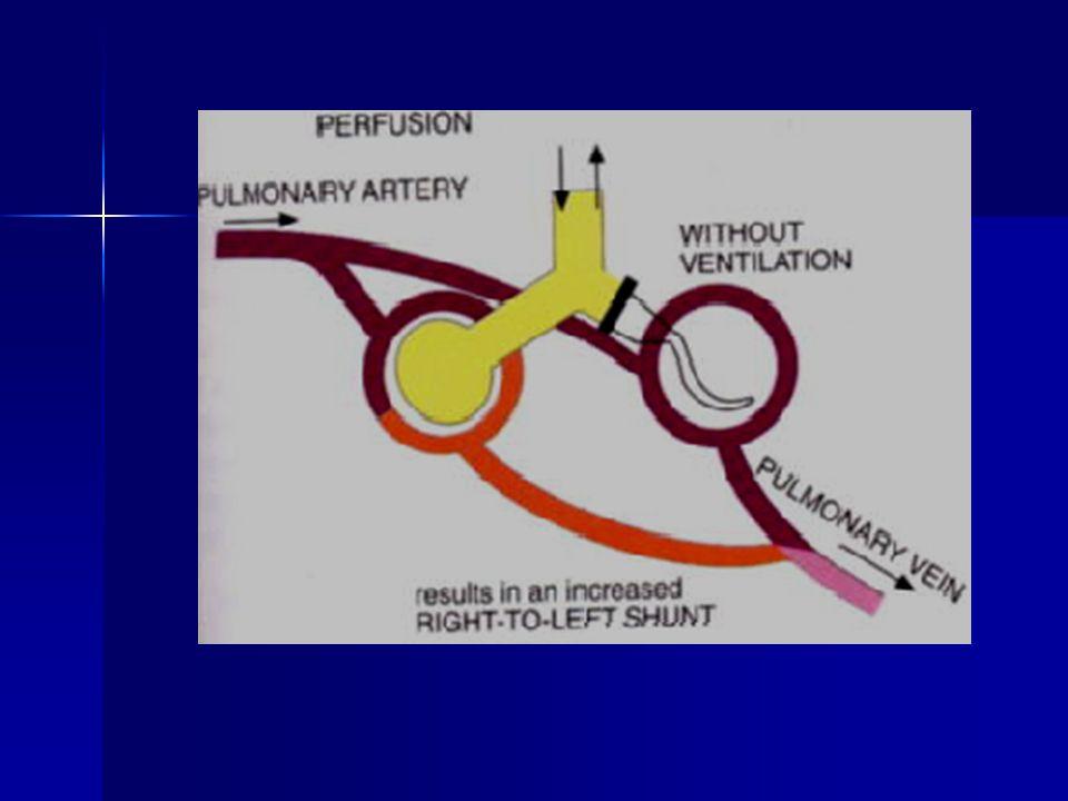 Diffüzyon bozukluğu HSY en nadir sebeblerindendir.