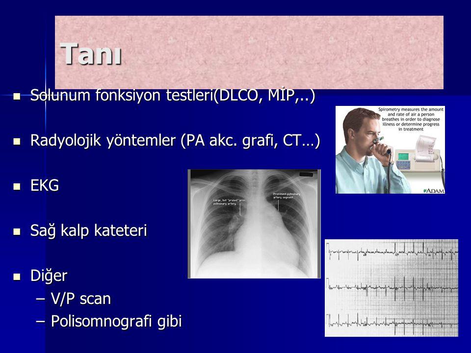 Tanı Solunum fonksiyon testleri(DLCO, MİP,..) Solunum fonksiyon testleri(DLCO, MİP,..) Radyolojik yöntemler (PA akc. grafi, CT…) Radyolojik yöntemler