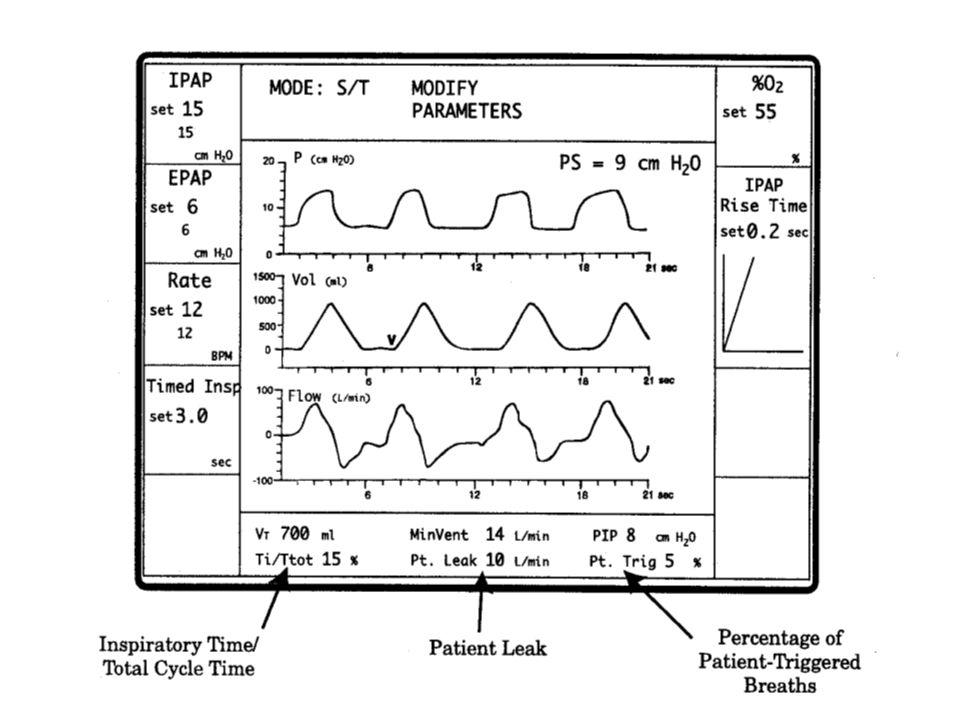 Hipoksemik solunum yetersizliği- NIMV PaO2/FiO2<200 (Maksimum medikal tedaviye rağmen) PaO2/FiO2<200 (Maksimum medikal tedaviye rağmen) Solunum sıkıntısı (solunum sayısı>35/dak) Solunum sıkıntısı (solunum sayısı>35/dak) –Yardımcı solunum kaslarının kullanılması –Paradoks solunum KOAH dışı tanı KOAH dışı tanı –Kalp yetersizliği –Pnömoni –ARDS –Travma