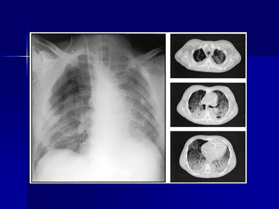 PATOGENEZ VE PATOLOJİ Alveole kapiller ünite hasarı ağır gaz değişimi bozukluğu Alveole kapiller ünite hasarı ağır gaz değişimi bozukluğu Artmış kapiller permeabilite ödem, proteinöz Artmış kapiller permeabilite ödem, proteinöz Patoloji: alveole-interstisyel proteinden zengin sıvı, eritrositler hiyalen membranlar, adeziv atelektaziler Patoloji: alveole-interstisyel proteinden zengin sıvı, eritrositler hiyalen membranlar, adeziv atelektaziler Sürfaktan kalite ve kantite bozukluğu : alveolar Kollaps: ŞANT Sürfaktan kalite ve kantite bozukluğu : alveolar Kollaps: ŞANT Fibrozis, mikrokistik akciğer( SÜNGER) Fibrozis, mikrokistik akciğer( SÜNGER)