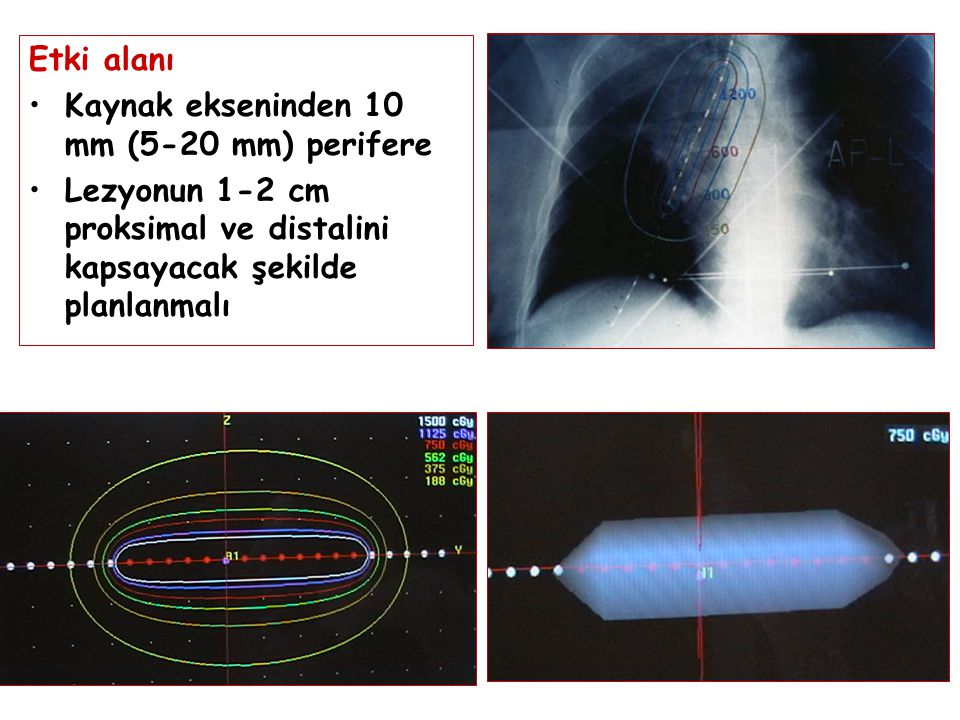 Etki alanı Kaynak ekseninden 10 mm (5-20 mm) perifere Lezyonun 1-2 cm proksimal ve distalini kapsayacak şekilde planlanmalı