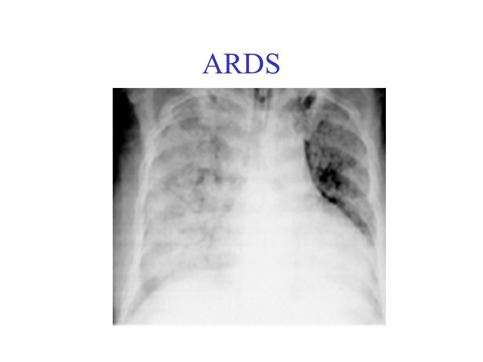 ARDS Acil hastaya yaklaşım Hemodinamik monitörizasyon Pulse – oksimetre takibi ve ventilasyon desteği başlanmalıdır Barotravma riskini unutmadan oksijenizasyonu sağlayabilecek PEEP basıncı uygulanmalı Bir miktar permisif hiperkapniye izin verilmeli, Gerekirse pH<7.1 olanlarda bikarbonat infüzyonu yapılmalı Yoğun bakım ünitelerinde farklı ventilasyon destekleri de sağlanabilmektedir.