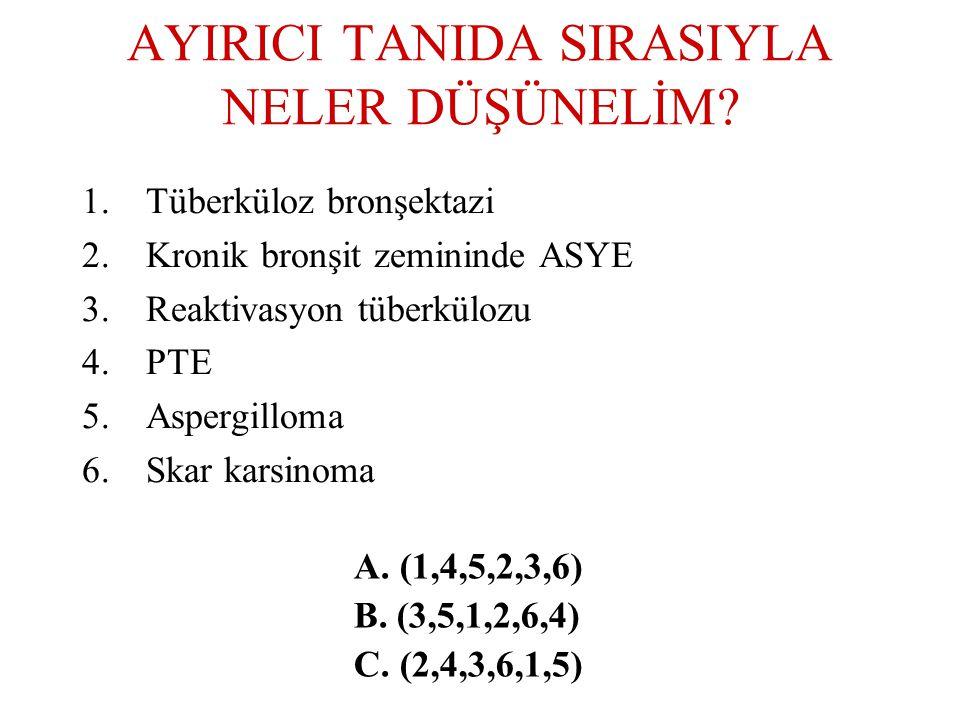 AYIRICI TANIDA SIRASIYLA NELER DÜŞÜNELİM? 1.Tüberküloz bronşektazi 2.Kronik bronşit zemininde ASYE 3.Reaktivasyon tüberkülozu 4.PTE 5.Aspergilloma 6.S