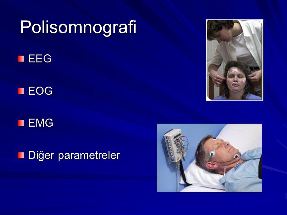 Polisomnografi EEGEOGEMG Diğer parametreler