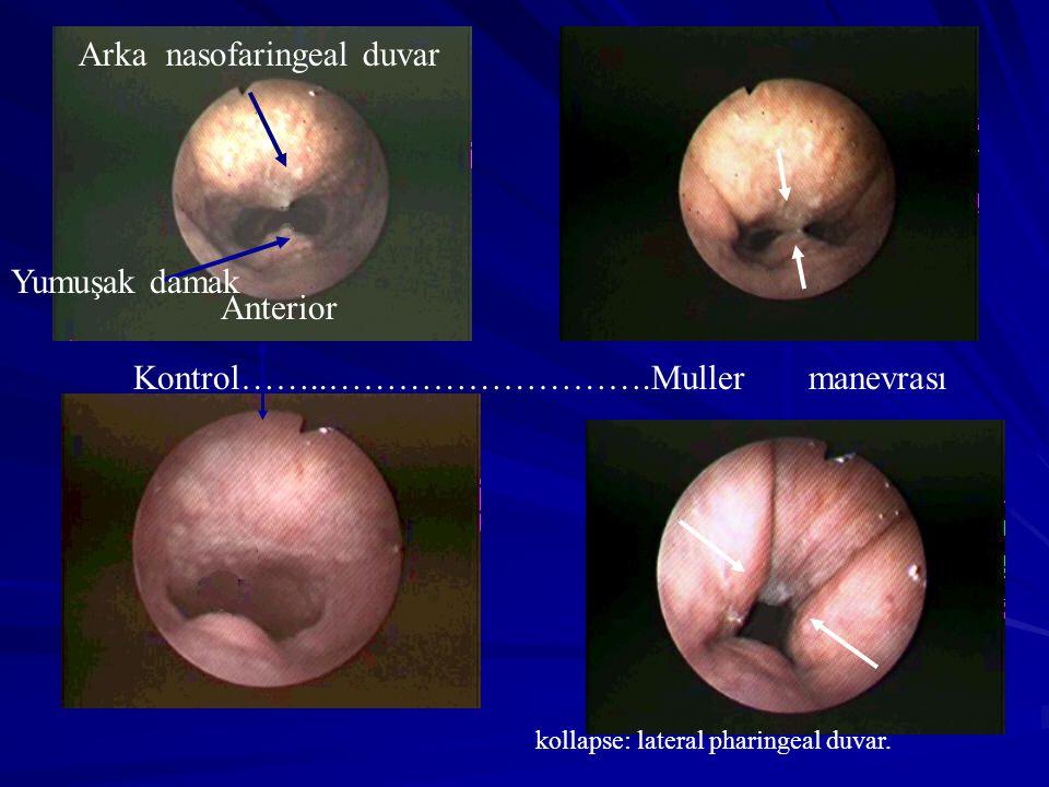 Kontrol……..……………………….Muller manevrası Anterior Yumuşak damak Arka nasofaringeal duvar kollapse: lateral pharingeal duvar.