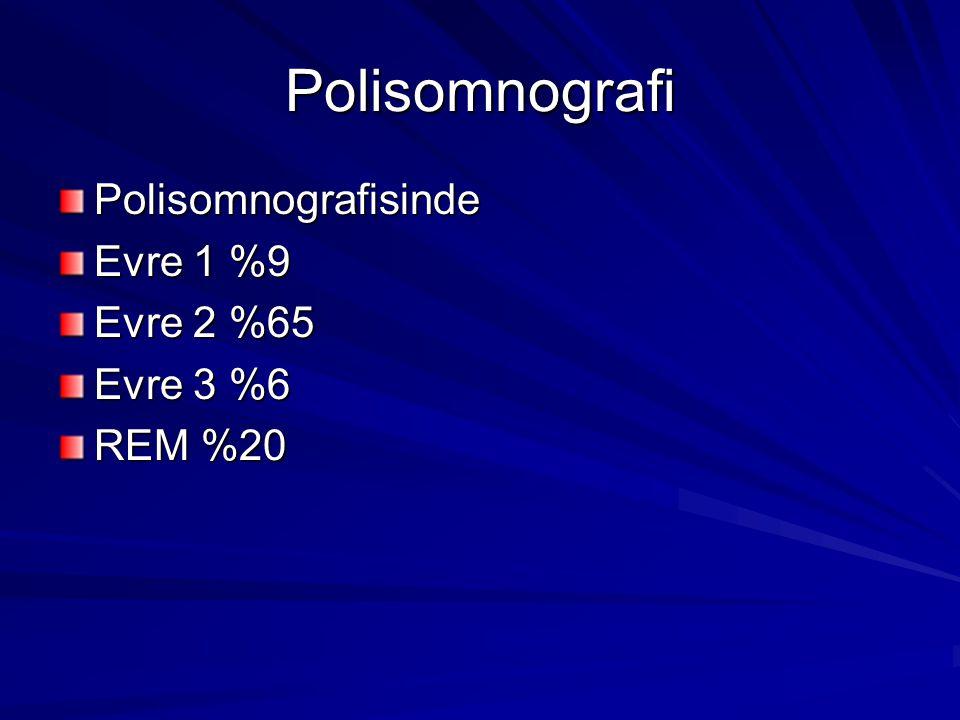 Polisomnografi Polisomnografisinde Evre 1 %9 Evre 2 %65 Evre 3 %6 REM %20