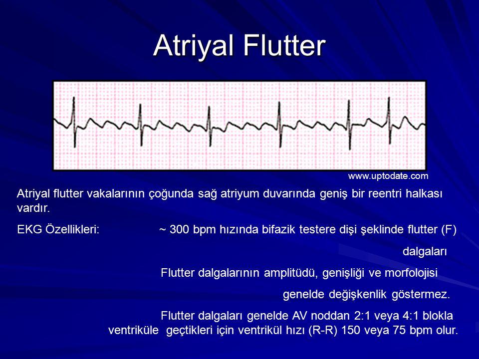 Atriyal Flutter Atriyal flutter vakalarının çoğunda sağ atriyum duvarında geniş bir reentri halkası vardır.