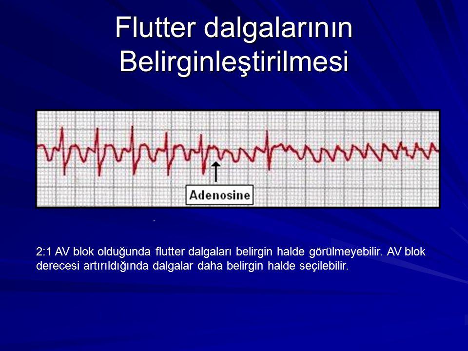 Flutter dalgalarının Belirginleştirilmesi 2:1 AV blok olduğunda flutter dalgaları belirgin halde görülmeyebilir.