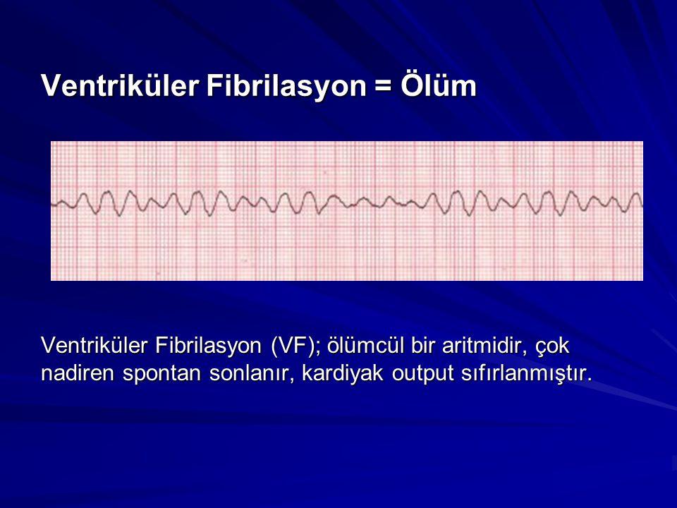 Ventriküler Fibrilasyon = Ölüm Ventriküler Fibrilasyon (VF); ölümcül bir aritmidir, çok nadiren spontan sonlanır, kardiyak output sıfırlanmıştır.