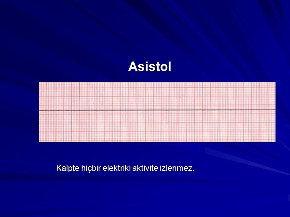 Asistol Asistol Kalpte hiçbir elektriki aktivite izlenmez.