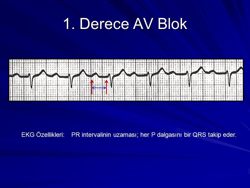 1. Derece AV Blok EKG Özellikleri:PR intervalinin uzaması; her P dalgasını bir QRS takip eder.