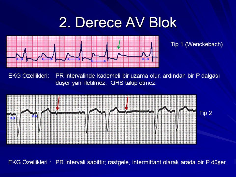 2. Derece AV Blok Tip 1 (Wenckebach) EKG Özellikleri:PR intervalinde kademeli bir uzama olur, ardından bir P dalgası düşer yani iletilmez, QRS takip e